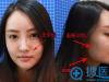 【真实经历】看我在南京韩辰整形医院做线雕蛋白线提升效果如何
