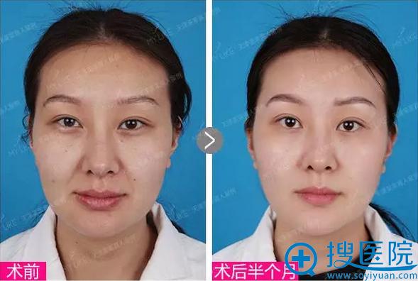 线雕手术半个月了,鼻唇沟淡化紧致、苹果肌也显著提升