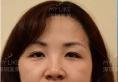 【真实经历】深圳美莱整形医院梁宇辉做1次线雕让我年轻了10岁