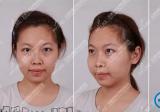 【亲身经历】在天津美莱整形医院注射玻尿酸隆下颌+隆鼻效果图