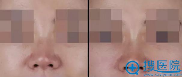 玻尿酸隆鼻+苹果肌前后对比效果