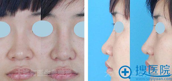 大连何医生假体隆鼻修复前后对比照片