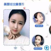 【案例】上海天大整形医院用自体脂肪打造的初恋脸什么样