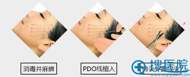 西安高一生面部线雕手术过程