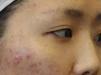 真人案例揭秘广州曙光整形医院激光祛痘疤痘印效果怎么样