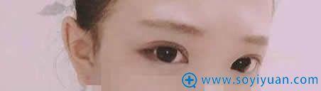 上海伊莱美埋线双眼皮十天恢复图