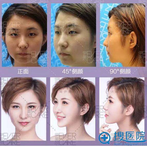 5S重睑术术前术后对比照片