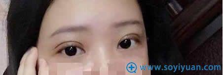 上海伊莱美做埋线双眼皮术后5天照片