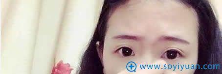 在上海伊莱美做埋线双眼皮前照片
