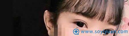 上海伊莱美做双眼皮术后15天照片