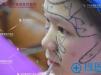 【案例】刚在深圳雅涵医疗整形找高山隆鼻子3个月 看效果怎么样