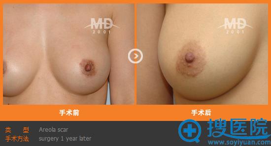 韩国MD整形医院乳晕整形案例