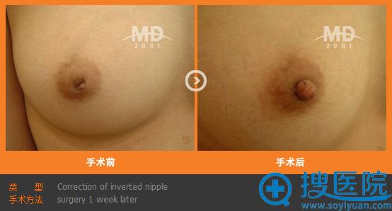 韩国MD整形医院乳头内陷矫正案例