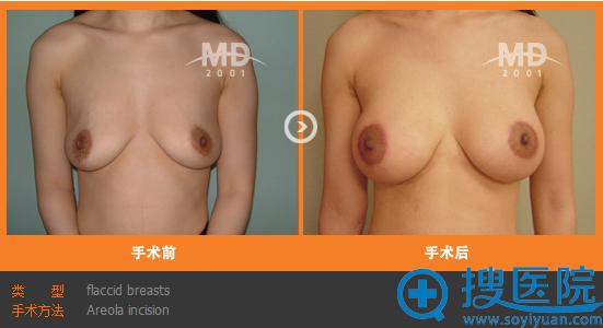 韩国MD整形医院下垂乳房矫正手术案例