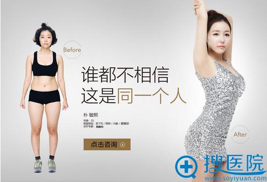 郑皓均院长Body Tite射频溶脂双下巴、颈部、大腿、腰腹部案例