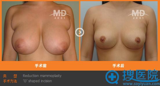 韩国MD整形医院胸部缩小手术案例