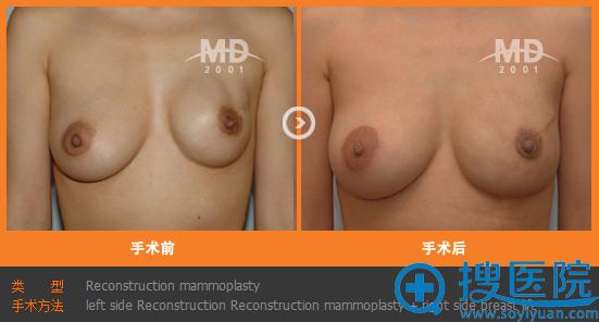 韩国MD整形医院乳房重建整形手术案例
