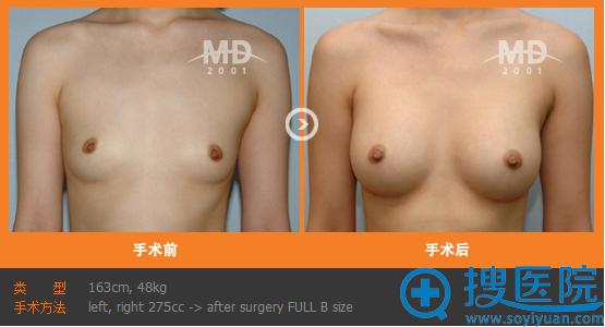 韩国MD整形医院假体隆胸手术案例