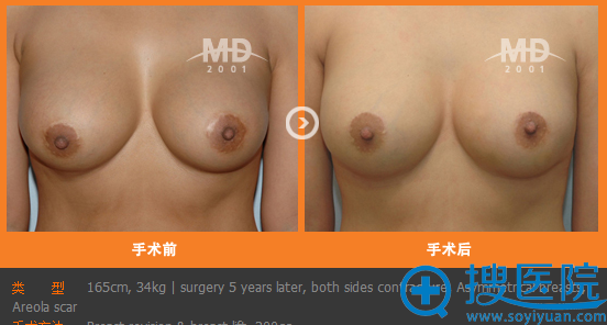 韩国MD整形医院胸部再造手术案例
