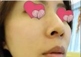 分享我在上海宏康整形医院找专家李长江做超声刀美肤2个月效果