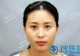 【经历】刚在石家庄雅芳亚880元做韩式半永久雾眉15天恢复照片