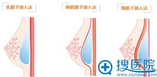 日本假体隆胸的手术方法示意图