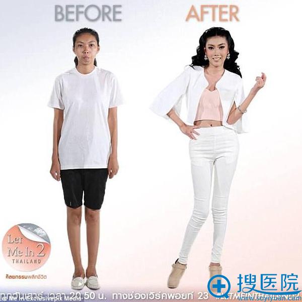 泰国龅牙妹Punbu术前术后对比效果