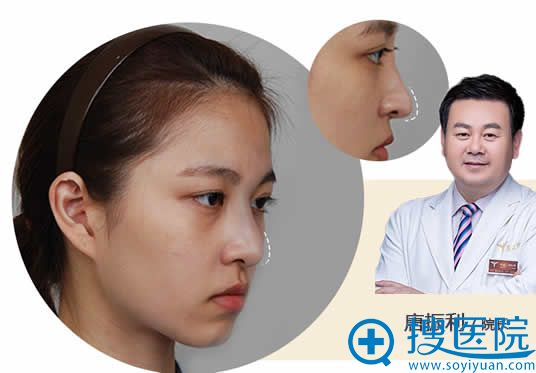 北京玉之光唐振利鼻尖塑形案例