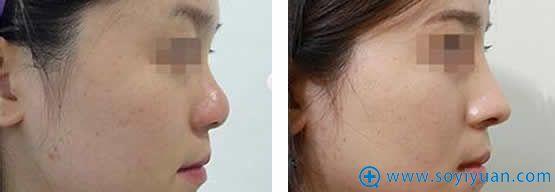 西安西美整形玻尿酸隆鼻案例图