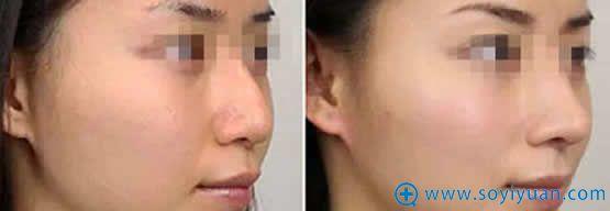 西安西美膨体隆鼻案例对比图