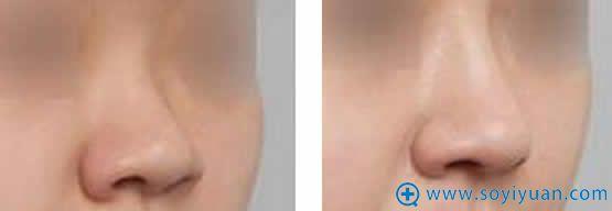 西安西美自体软骨隆鼻案例图
