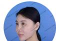 北京艺美王东院长对苹果肌、下颏注射生长因子失败者进行修复