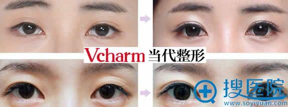 重庆当代双眼皮失败修复案例图