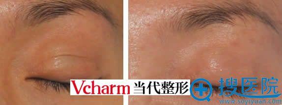 重庆当代眼睑疤痕磨除案例图
