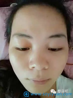 在韩国童颜中心做完祛斑的照片