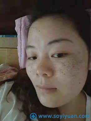在韩国童颜中心做祛斑之前的照片