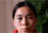 分享在杭州时光整形医院做激光祛除太田痣妹子的亲身经历效果图