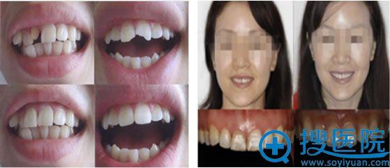 北京圣贝口腔烤瓷牙修复案例图