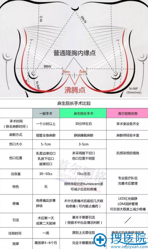 麻生泰院长隆胸手术优势比较