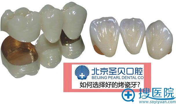 北京圣贝口腔医院霍平教授告诉你如何选择好的烤瓷牙