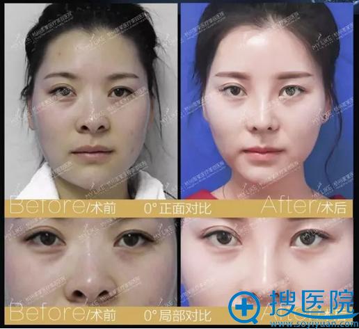 鼻综合正面对比图