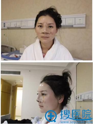 鼻综合术后3天恢复图片