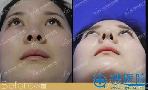 鼻综合仰面对比图片