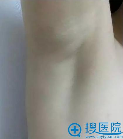 隆胸1年2个月,腋下手术切口已经完全看不见了