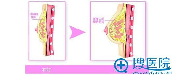 自体脂肪隆胸手术过程中注射脂肪