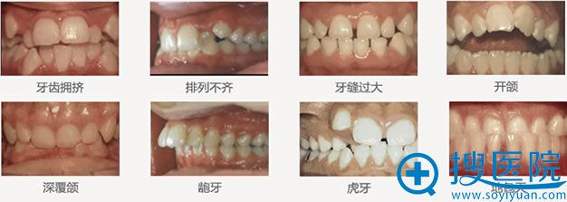 申请圣贝口腔隐适美牙套试戴的条件