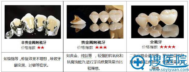 烤瓷牙材料的选择