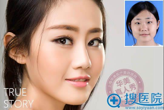 在上海华美整形做双眼皮隆鼻对比照