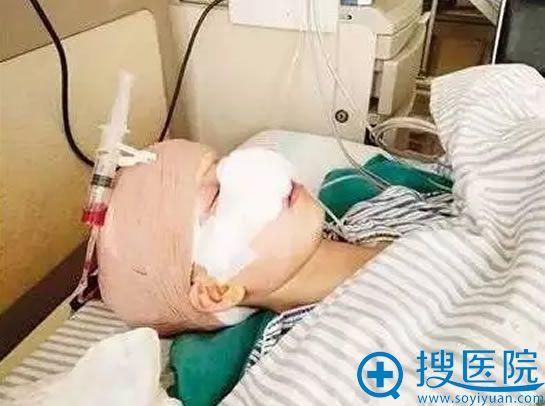 被前夫咬掉鼻子的张小荣在医院接受治疗