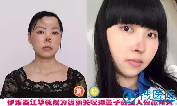 伊莱美江华教授为被前夫咬掉鼻子的女人做鼻再造